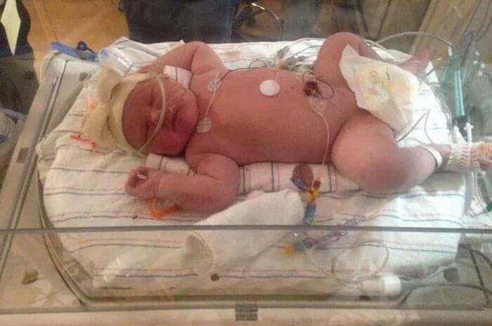 В Америці народилася дівчинка з рекордною вагою